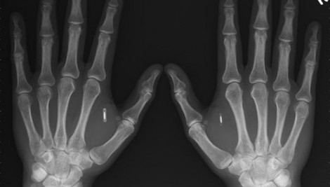 X-ray of RFID in hands